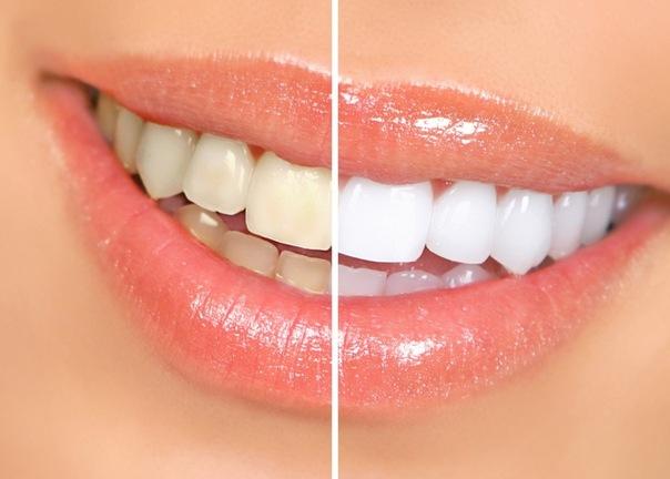 Отбеливаем зубы дома