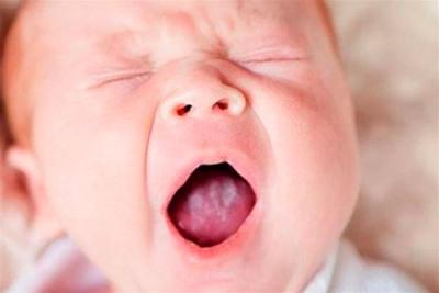 Частая молочница у женщин причины возникновения