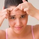 Лечение угрей и шрамов современными методами