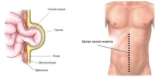 Лечение грыжи белой линии живота